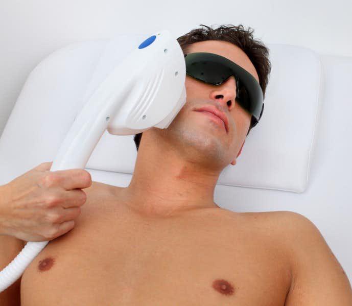 髭の医療レーザー脱毛で永久脱毛にかかる値段