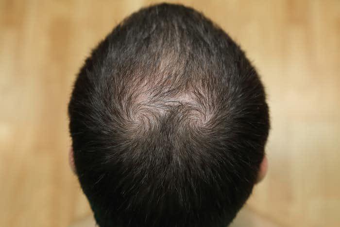 頭頂部 薄毛 髪型